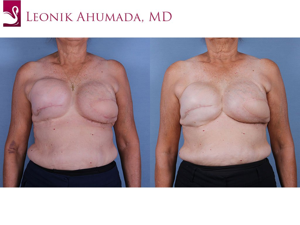 Breast Reconstruction Case #57195 (Image 1)
