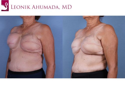 Breast Reconstruction Case #57195 (Image 2)