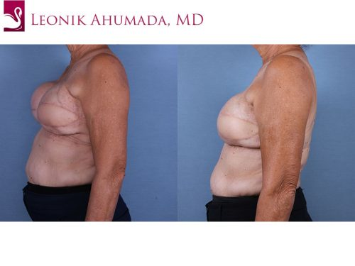 Breast Reconstruction Case #57195 (Image 3)