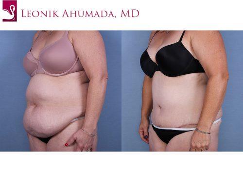 Abdominoplasty (Tummy Tuck) Case #63775 (Image 2)