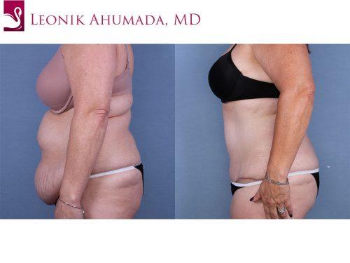 Abdominoplasty (Tummy Tuck) Case #63775 (Image 3)