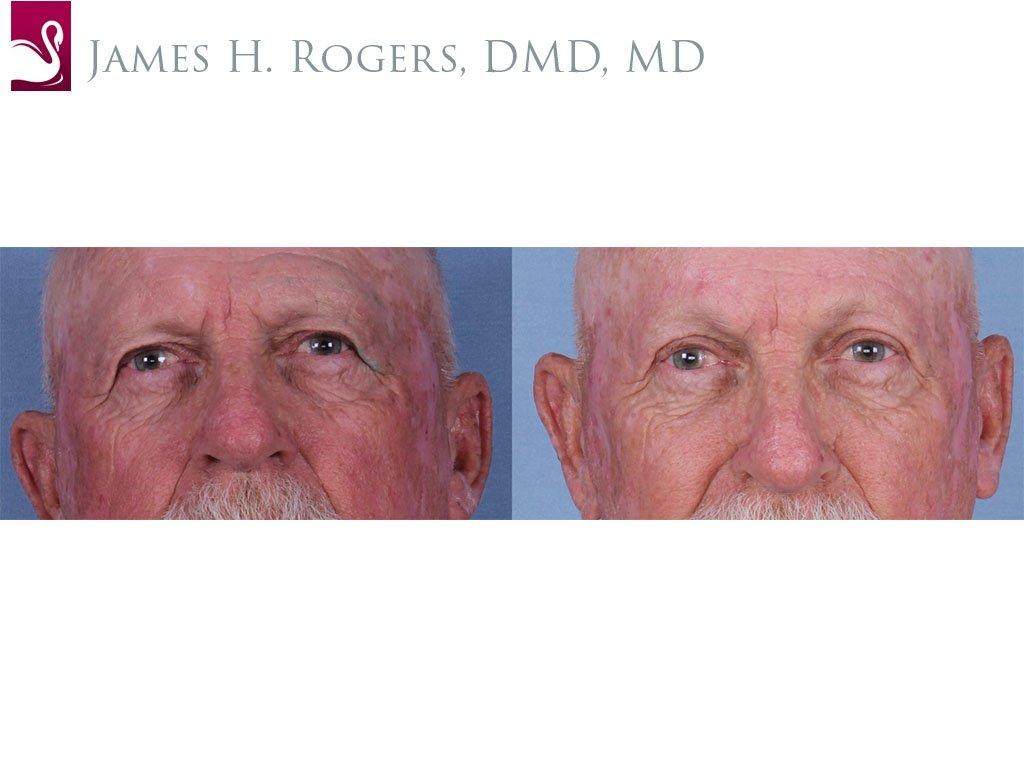 Eyelid Surgery Case #63236 (Image 1)