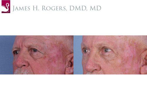 Eyelid Surgery Case #63236 (Image 2)