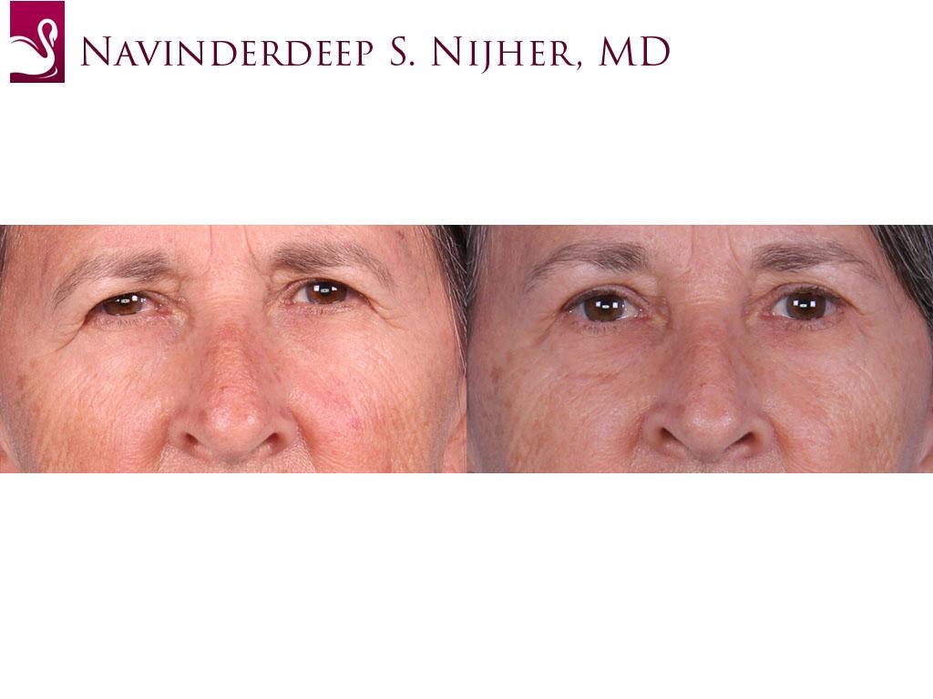 Eyelid Surgery Case #64411 (Image 1)