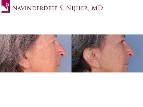 Eyelid Surgery Case #64411 (Image 3)