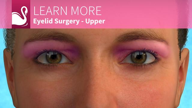 Eyelid Surgery | Blepharoplasty | Ocala Plastic Surgery