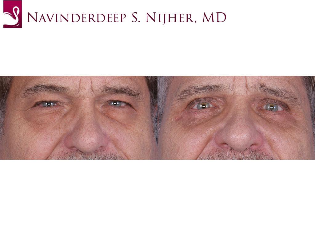 Eyelid Surgery Case #64737 (Image 1)