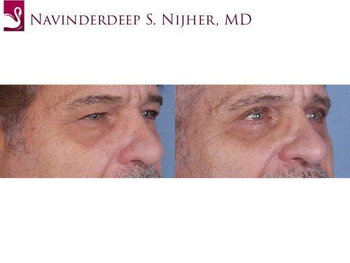 Eyelid Surgery Case #64737 (Image 2)