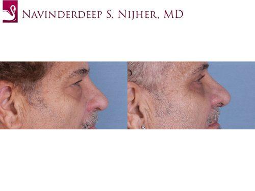 Eyelid Surgery Case #64737 (Image 3)