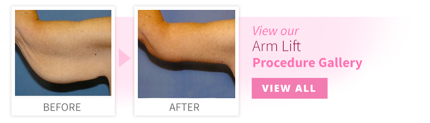 View our Arm Lift Procedure Gallery