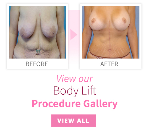 View our Body Lift Procedure Gallery