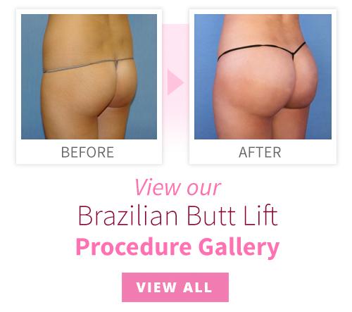 View our Brazilian Butt Lift Procedure Gallery