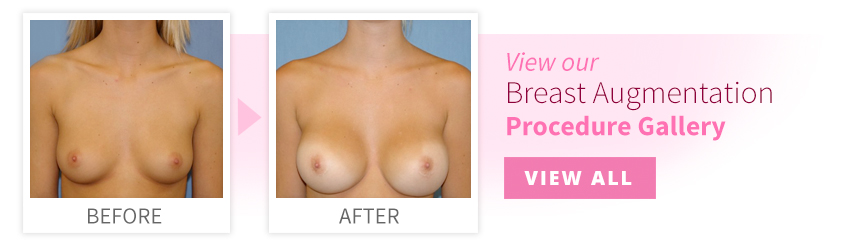 View our Breast Augmentation Procedure Gallery
