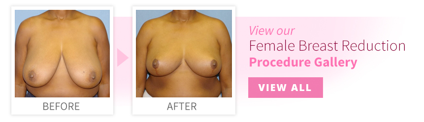 View our Breast Reduction Procedure Gallery