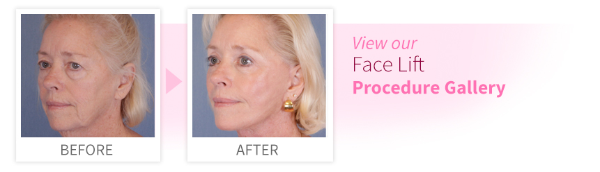 View our Face Lift Procedure Gallery