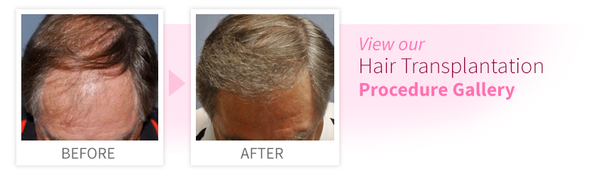 View our Hair Transplantation Procedure Gallery