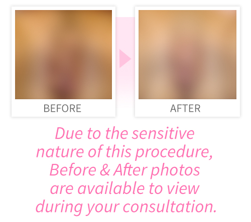 View our Labiaplasty Procedure Gallery