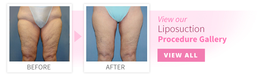 View our Liposuction Procedure Gallery