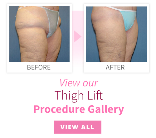 View our Thigh Lift Procedure Gallery