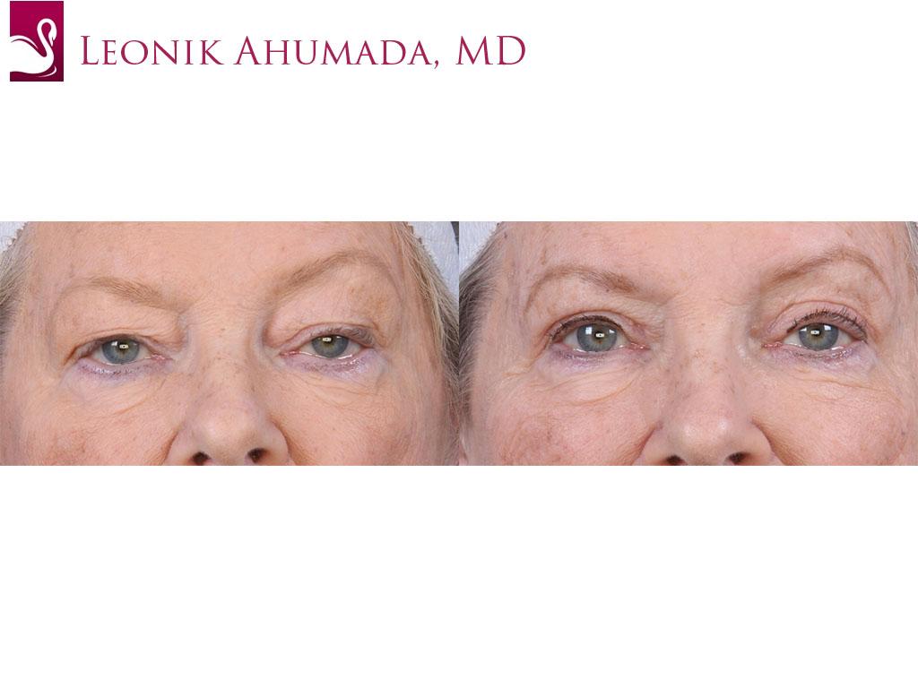 Eyelid Surgery Case #63596 (Image 1)