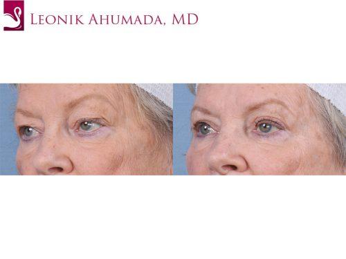 Eyelid Surgery Case #63596 (Image 2)