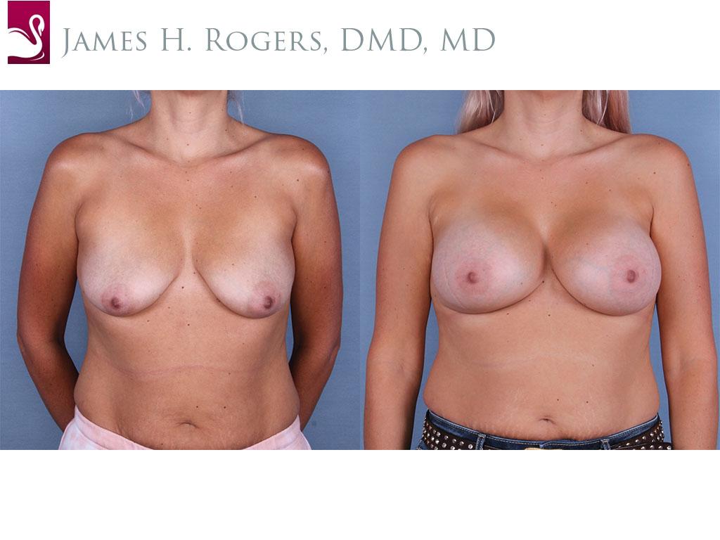 Breast Augmentation Case #65156 (Image 1)