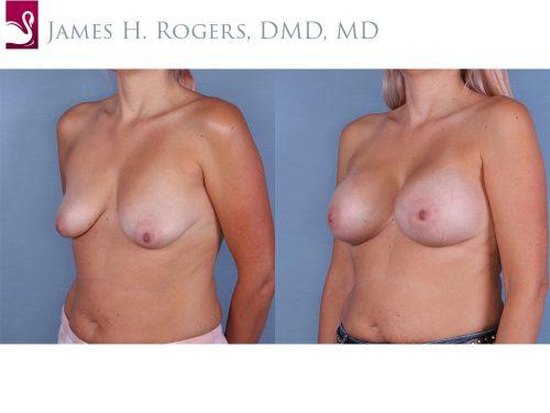 Breast Augmentation Case #65156 (Image 2)