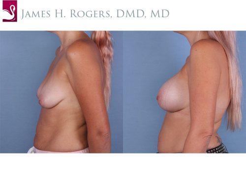 Breast Augmentation Case #65156 (Image 3)