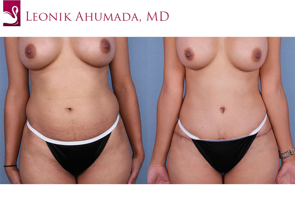 Abdominoplasty (Tummy Tuck) Case #45050 (Image 1)
