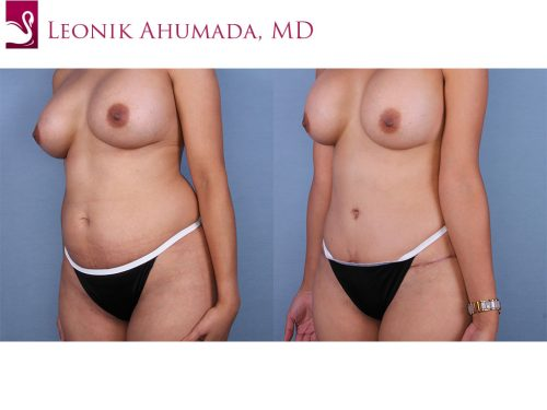 Abdominoplasty (Tummy Tuck) Case #45050 (Image 2)