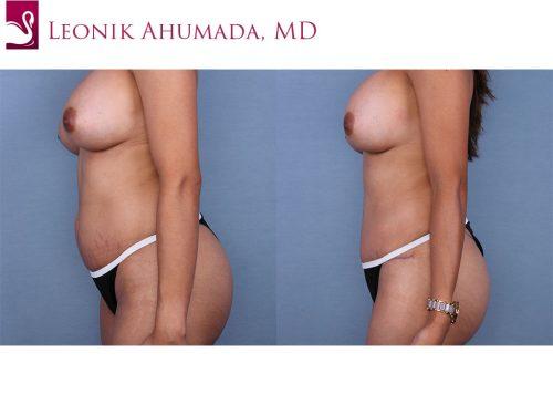 Abdominoplasty (Tummy Tuck) Case #45050 (Image 3)
