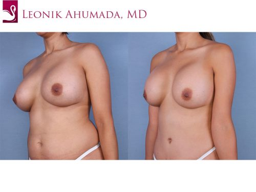 Breast Augmentation Case #45050 (Image 2)