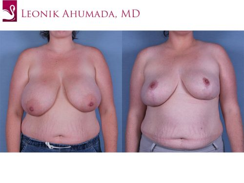 Female Breast Reduction Case #57777 (Image 1)