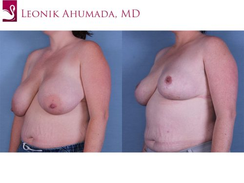 Female Breast Reduction Case #57777 (Image 2)