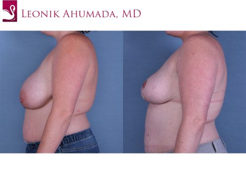 Female Breast Reduction Case #57777 (Image 3)