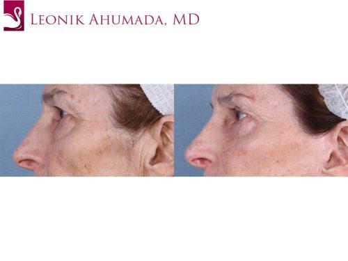 Eyelid Surgery Case #62462 (Image 3)