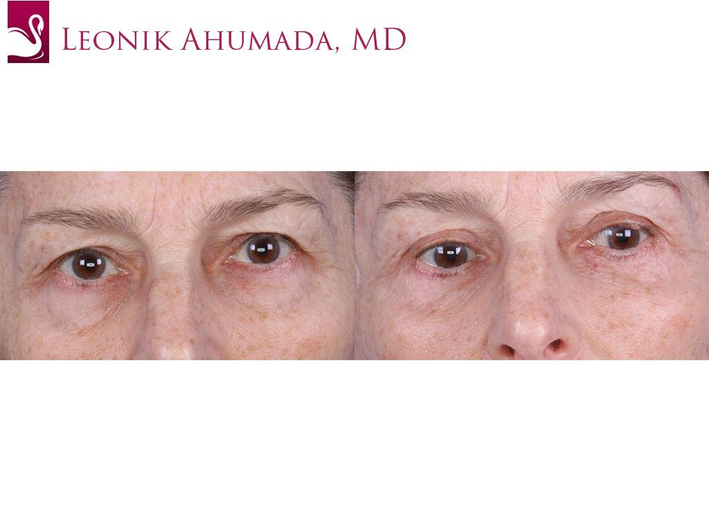 Eyelid Surgery Case #62462 (Image 1)
