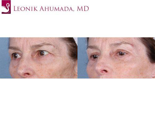 Eyelid Surgery Case #62462 (Image 2)