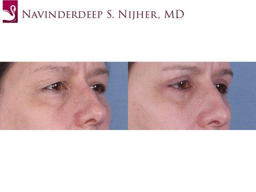 Eyelid Surgery Case #65236 (Image 2)