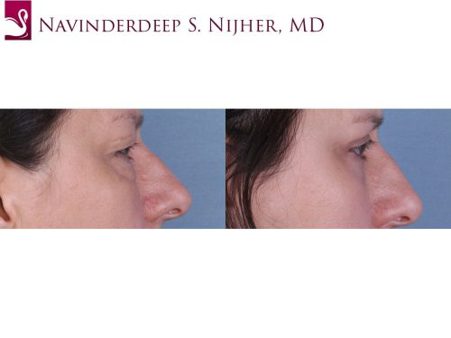 Eyelid Surgery Case #65236 (Image 3)