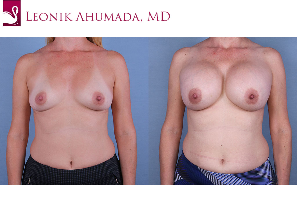 Breast Augmentation Case #63039 (Image 1)