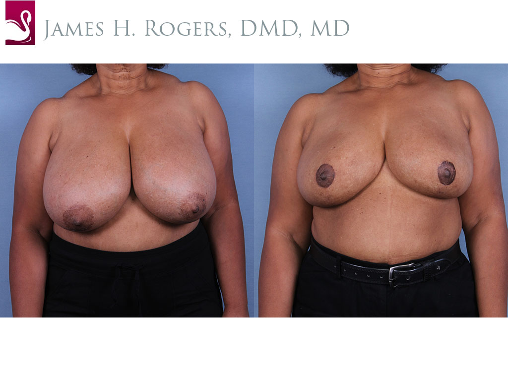 Female Breast Reduction Case #10899 (Image 1)