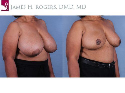 Female Breast Reduction Case #10899 (Image 2)