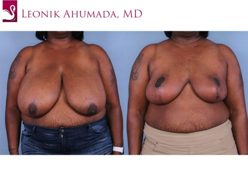 Female Breast Reduction Case #64590 (Image 1)