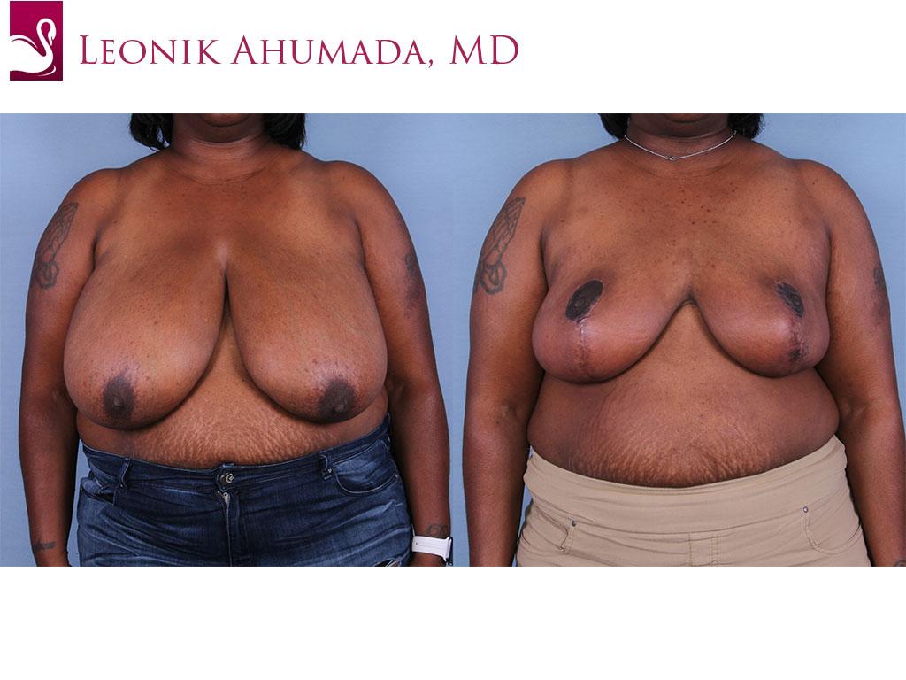 Female Breast Reduction Case #64590 (Image 1)