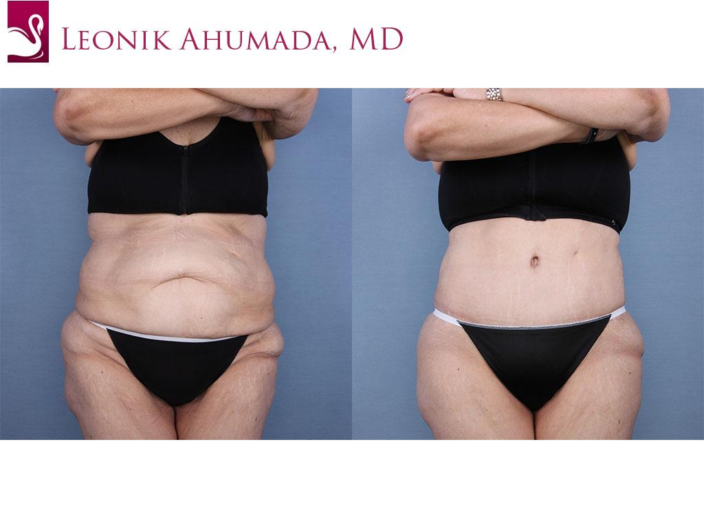 Abdominoplasty (Tummy Tuck) Case #65295 (Image 1)