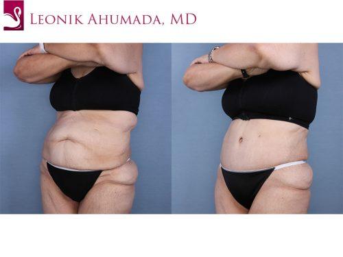 Abdominoplasty (Tummy Tuck) Case #65295 (Image 2)