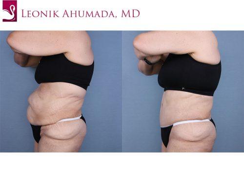 Abdominoplasty (Tummy Tuck) Case #65295 (Image 3)