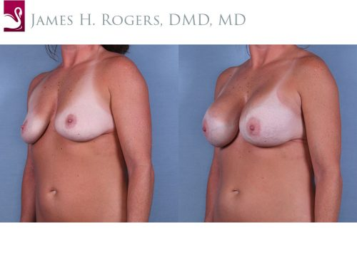 Breast Augmentation Case #64936 (Image 2)
