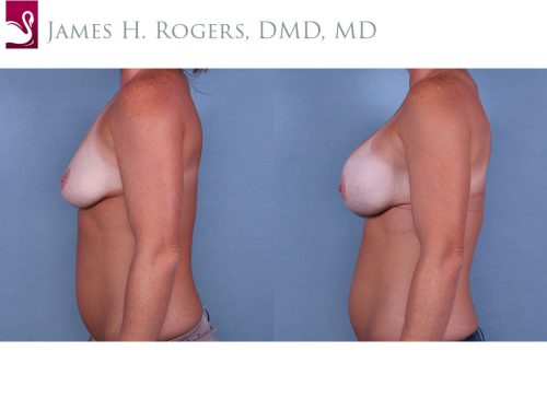 Breast Augmentation Case #64936 (Image 3)